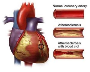 coronary-heart-disease
